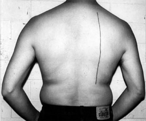 Santiago SIERRA - Fotografia - LINEA DE 30 cm. TATUADA SOBRE UNA PERSONA RENUMERADA. Calle