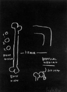 Jean-Michel BASQUIAT - Stampa Multiplo - anatomy