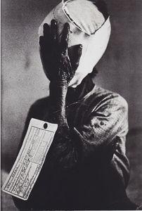 Philip JONES GRIFFITHS - Fotografia - Vietnam – victime du napalm