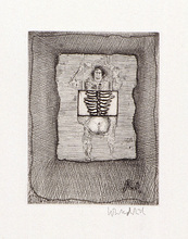 "Paul WUNDERLICH - Estampe-Multiple - ""X-Rays"""