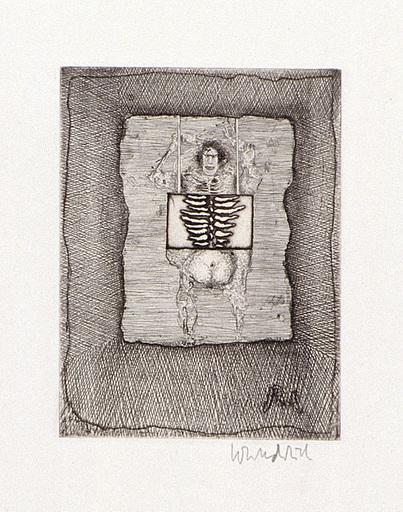 "Paul WUNDERLICH - Estampe-Multiple - ""X-Rays"""