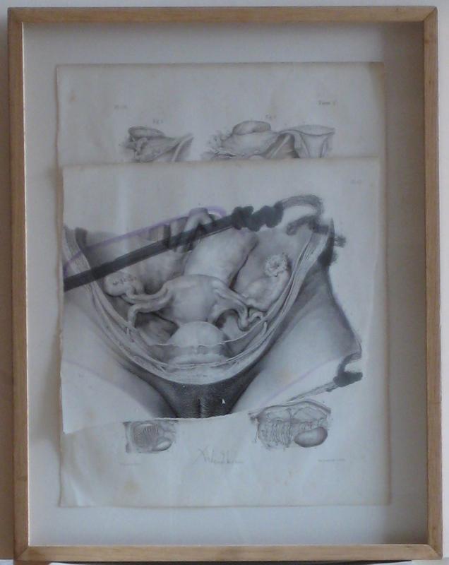 DADO - Dibujo Acuarela - COLLAGE 2 PLANCHES ANATOMIQUES REHAUT AQUARELLE 1996 SIGNÉE
