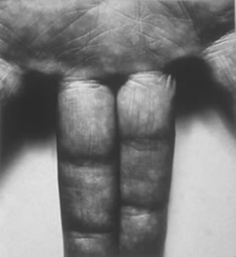 John Rivers COPLANS - Fotografia - Self portrait Hand Spread Fingers, 1987